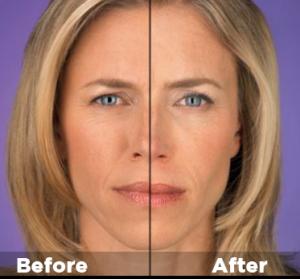 Botox2-300x279